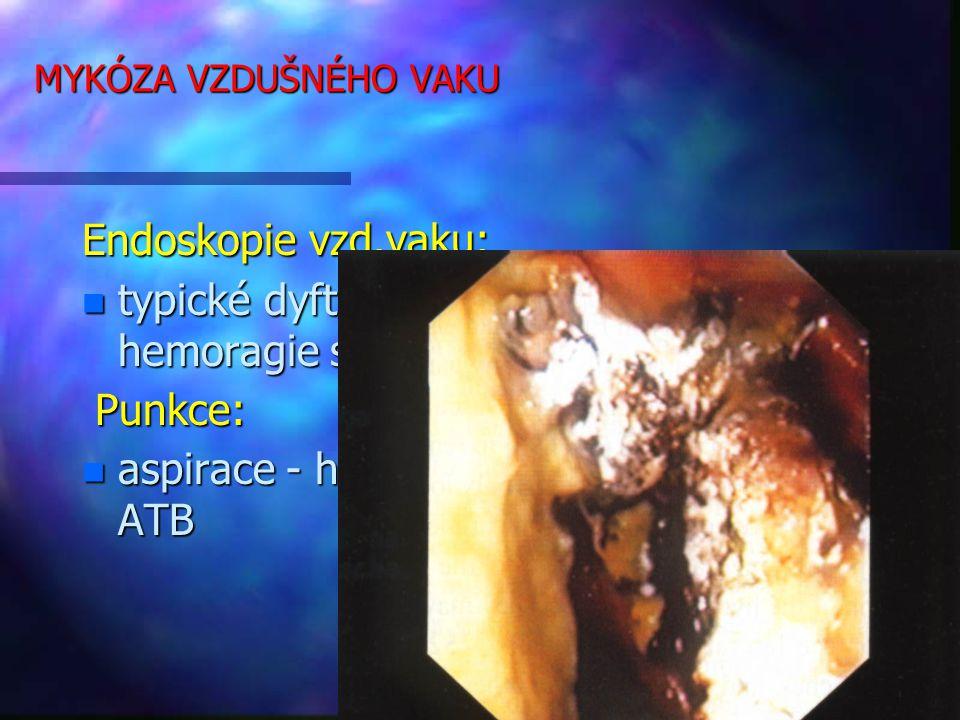 MYKÓZA VZDUŠNÉHO VAKU Endoskopie vzd.vaku: n typické dyfterické membrány a hemoragie sliznice, hnis Punkce: Punkce: n aspirace - hnis - kultivace - citlivost k ATB