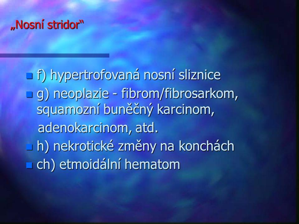 """""""Nosní stridor n f) hypertrofovaná nosní sliznice n g) neoplazie - fibrom/fibrosarkom, squamozní buněčný karcinom, adenokarcinom, atd."""