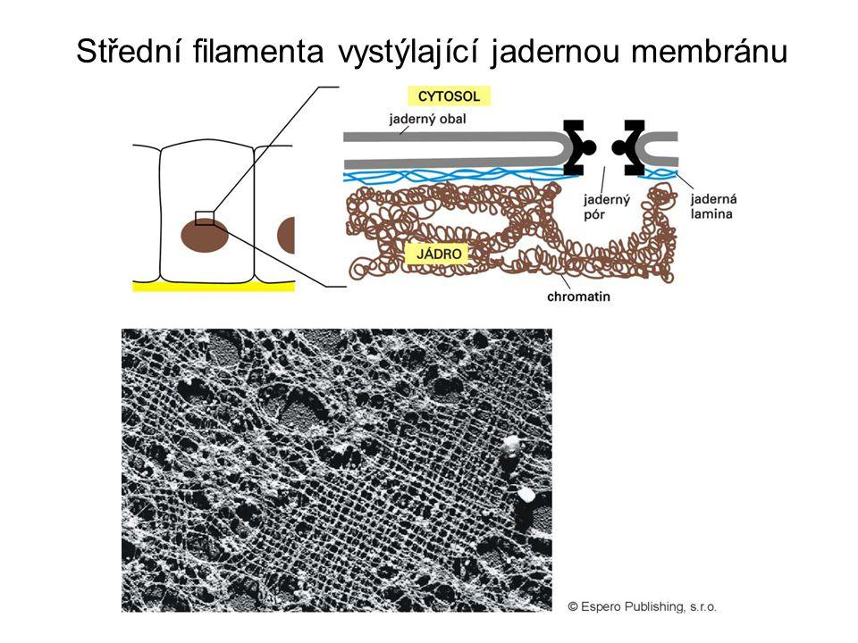 Střední filamenta vystýlající jadernou membránu