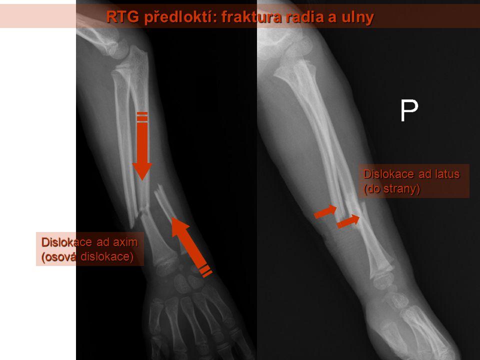 RTG předloktí: fraktura radia a ulny Dislokace ad axim (osová dislokace) Dislokace ad latus (do strany)