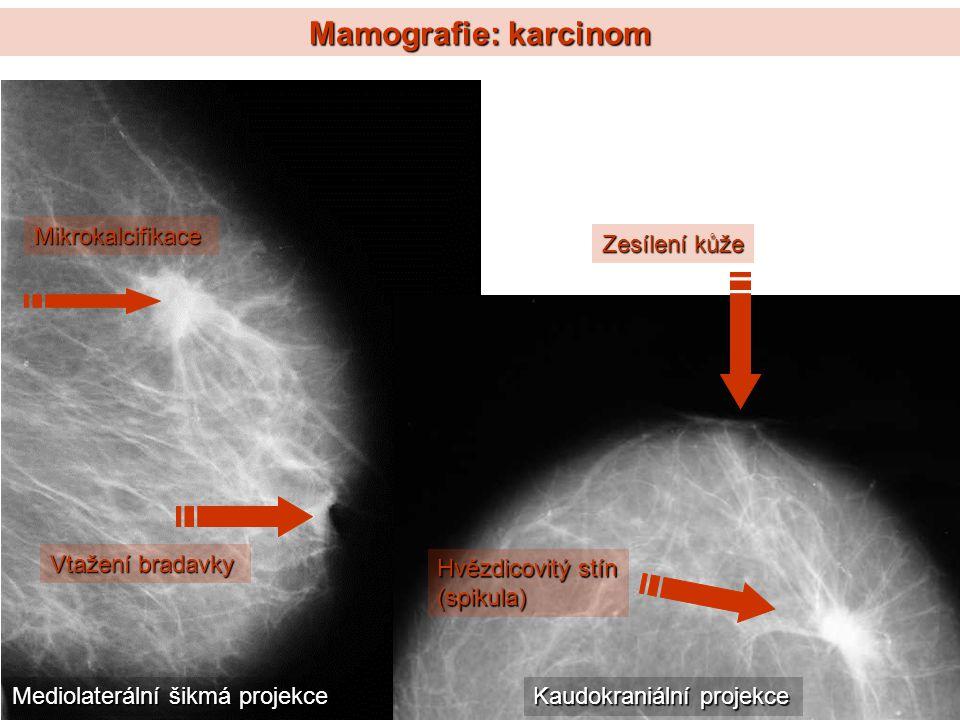 Mamografie: karcinom Mikrokalcifikace Hvězdicovitý stín (spikula) Vtažení bradavky Zesílení kůže Mediolaterální šikmá projekce Kaudokraniální projekce