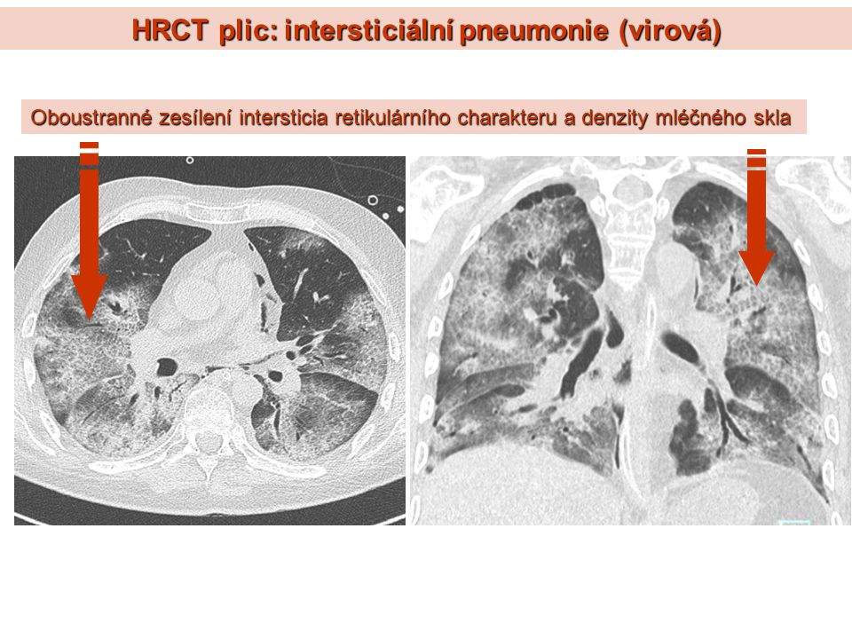 HRCT plic: intersticiální pneumonie (virová) Oboustranné zesílení intersticia retikulárního charakteru a denzity mléčného skla