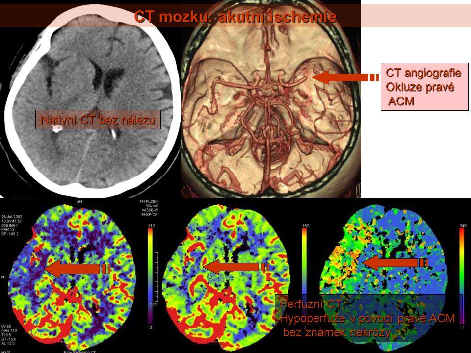 CT mozku: akutní ischemie Nativní CT bez nálezu CT angiografie Okluze pravé ACM ACM Perfuzní CT Hypoperfuze v povodí pravé ACM bez známek nekrózy bez známek nekrózy