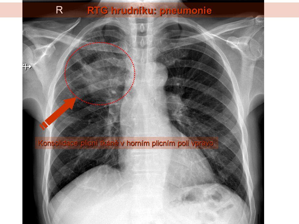 RTG hrudníku: pneumonie Konsolidace plicní tkáně v horním plicním poli vpravo