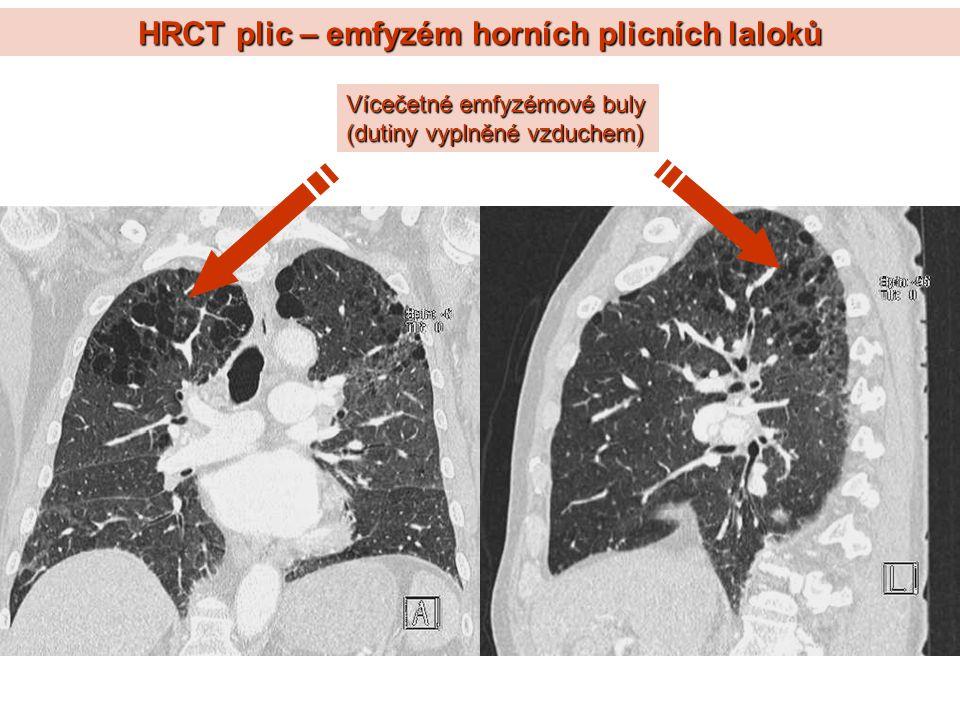 HRCT plic – emfyzém horních plicních laloků Vícečetné emfyzémové buly (dutiny vyplněné vzduchem)