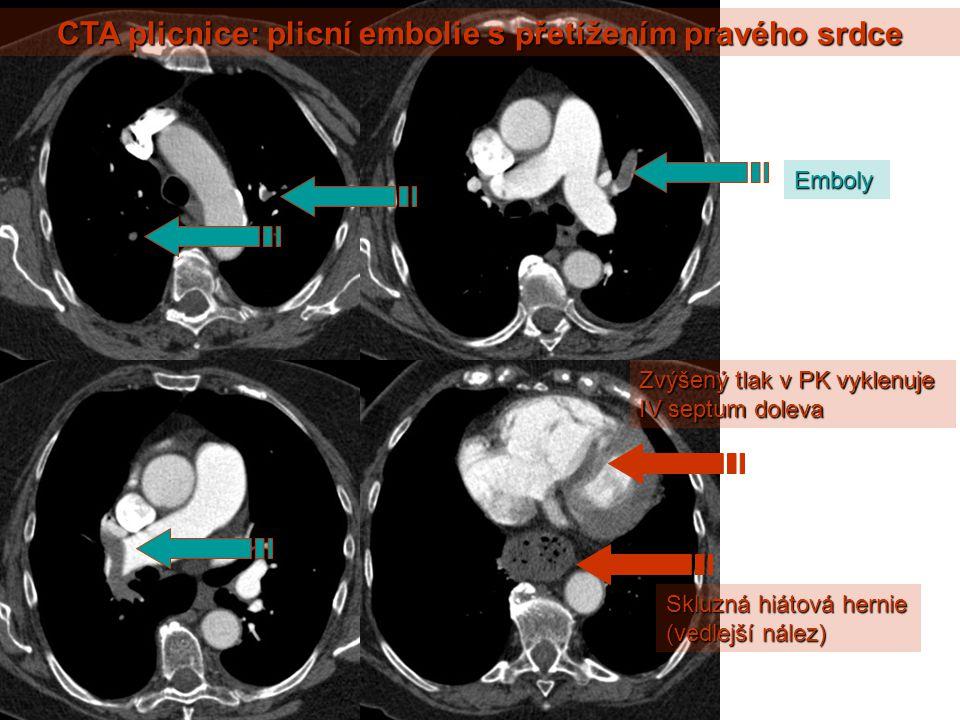 CTA plicnice: plicní embolie s přetížením pravého srdce Zvýšený tlak v PK vyklenuje IV septum doleva Skluzná hiátová hernie (vedlejší nález) Emboly
