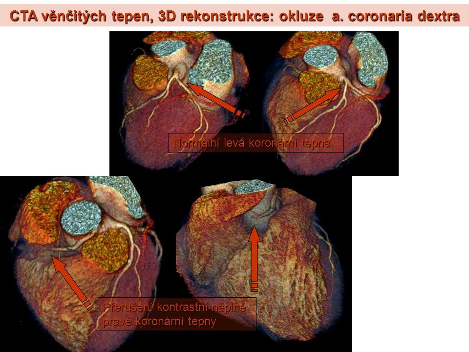 CTA věnčitých tepen, 3D rekonstrukce: okluze a. coronaria dextra Přerušení kontrastní náplně pravé koronární tepny Normální levá koronární tepna