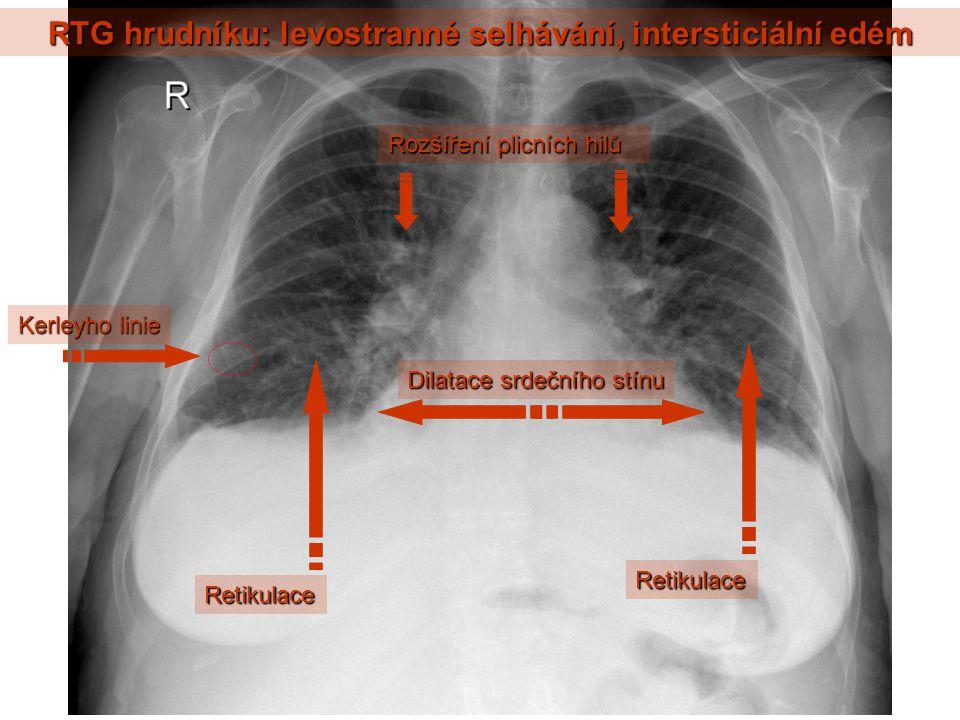 RTG hrudníku: levostranné selhávání, intersticiální edém Kerleyho linie Dilatace srdečního stínu Rozšíření plicních hilů Retikulace Retikulace