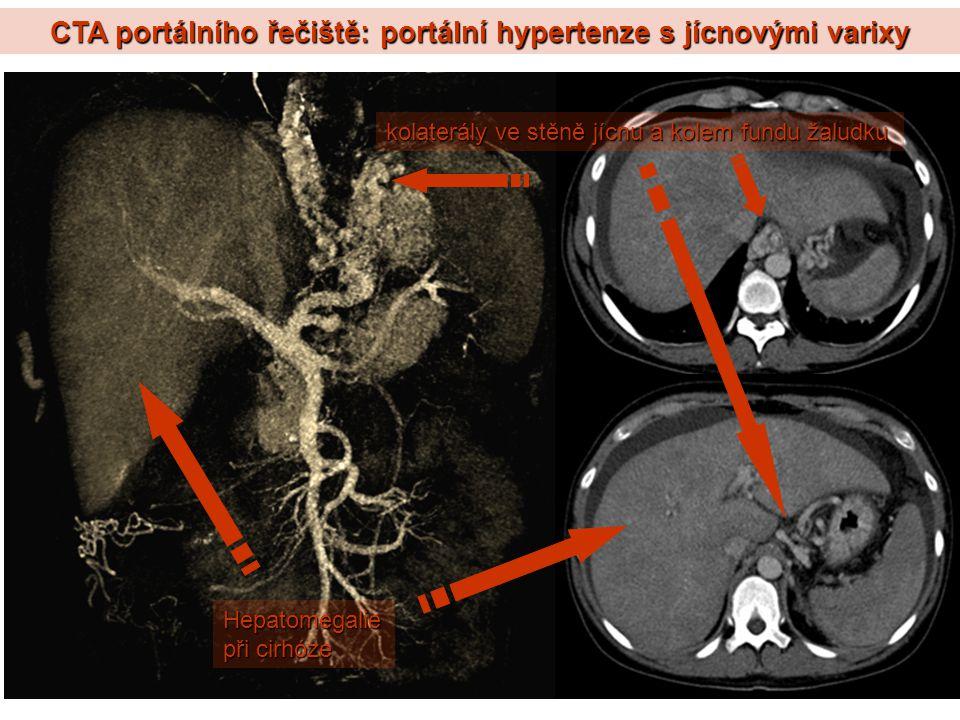 CTA portálního řečiště: portální hypertenze s jícnovými varixy kolaterály ve stěně jícnu a kolem fundu žaludku Hepatomegalie při cirhóze
