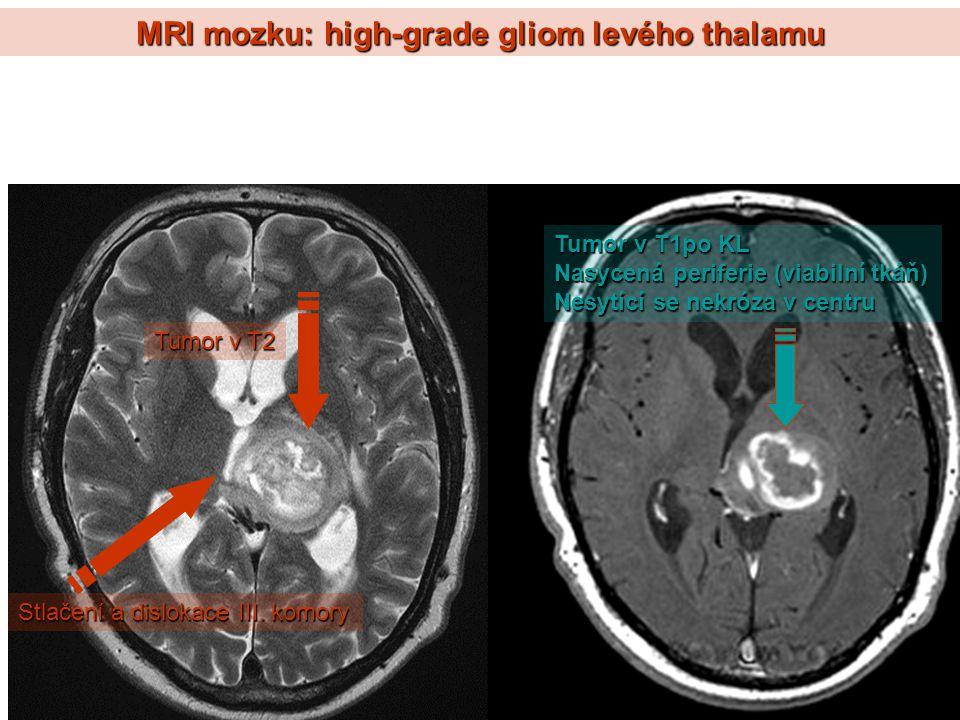 MRI mozku: high-grade gliom levého thalamu Tumor v T2 Tumor v T1po KL Nasycená periferie (viabilní tkáň) Nesytící se nekróza v centru Stlačení a dislo