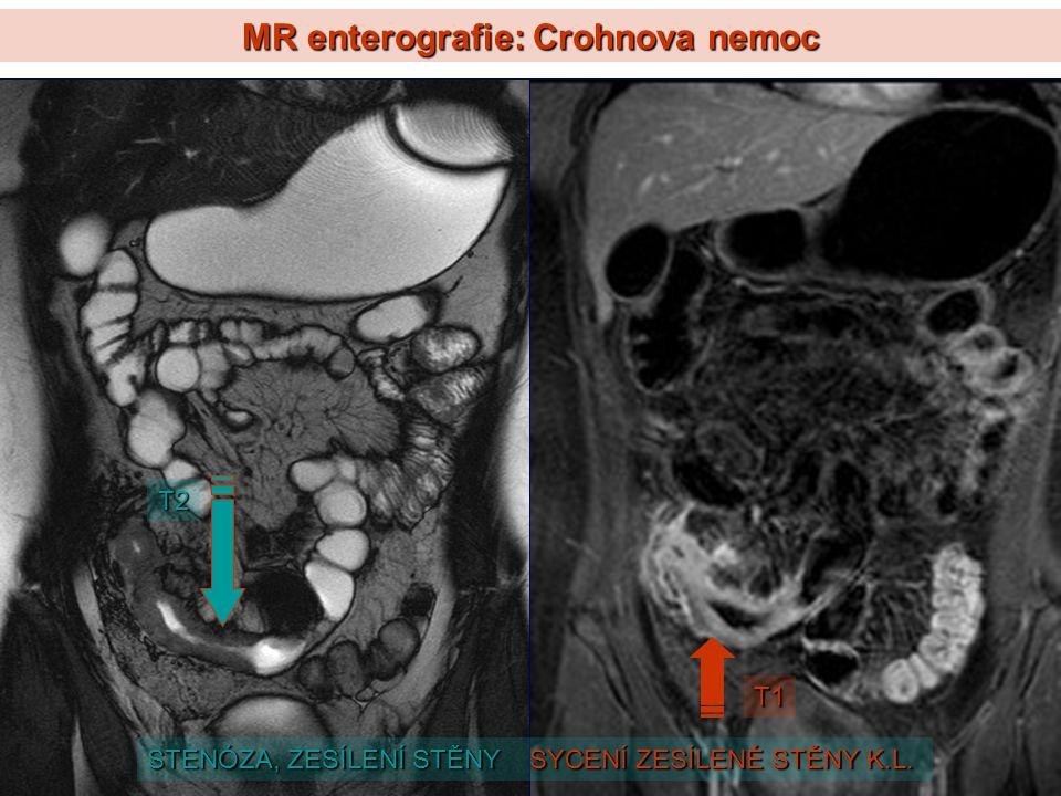 MR enterografie: Crohnova nemoc T2 T1 STENÓZA, ZESÍLENÍ STĚNY SYCENÍ ZESÍLENÉ STĚNY K.L.