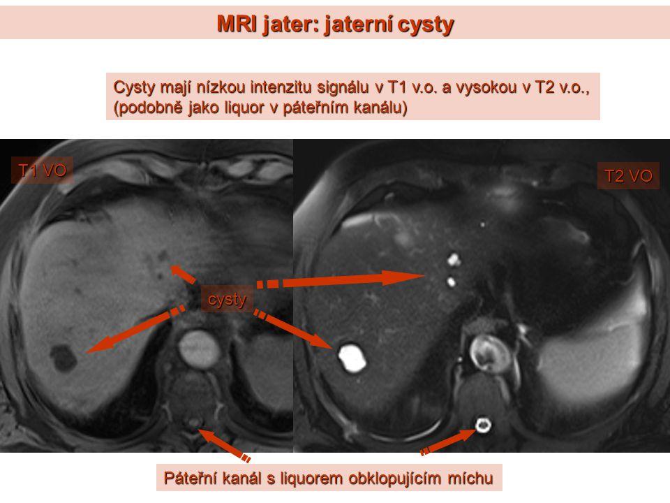 MRI jater: jaterní cysty Cysty mají nízkou intenzitu signálu v T1 v.o. a vysokou v T2 v.o., (podobně jako liquor v páteřním kanálu) cysty Páteřní kaná