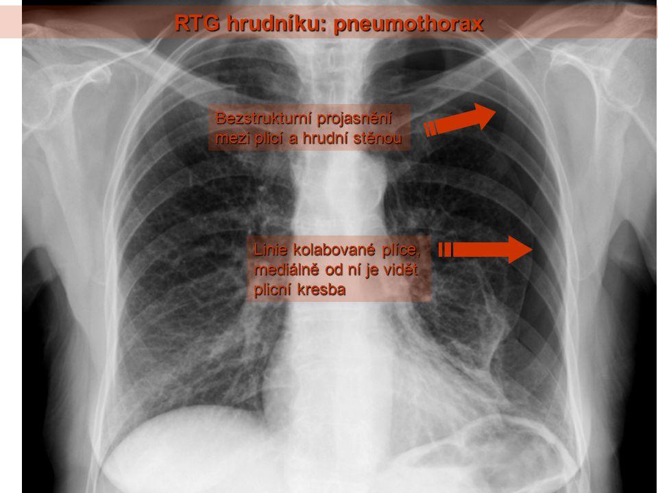 RTG hrudníku: pneumothorax Linie kolabované plíce, mediálně od ní je vidět plicní kresba Bezstrukturní projasnění mezi plicí a hrudní stěnou