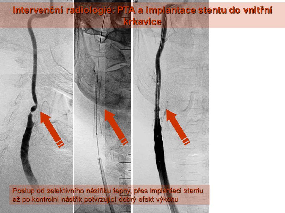 Intervenční radiologie: PTA a implantace stentu do vnitřní krkavice Postup od selektivního nástřiku tepny, přes implantaci stentu až po kontrolní nástřik potvrzující dobrý efekt výkonu