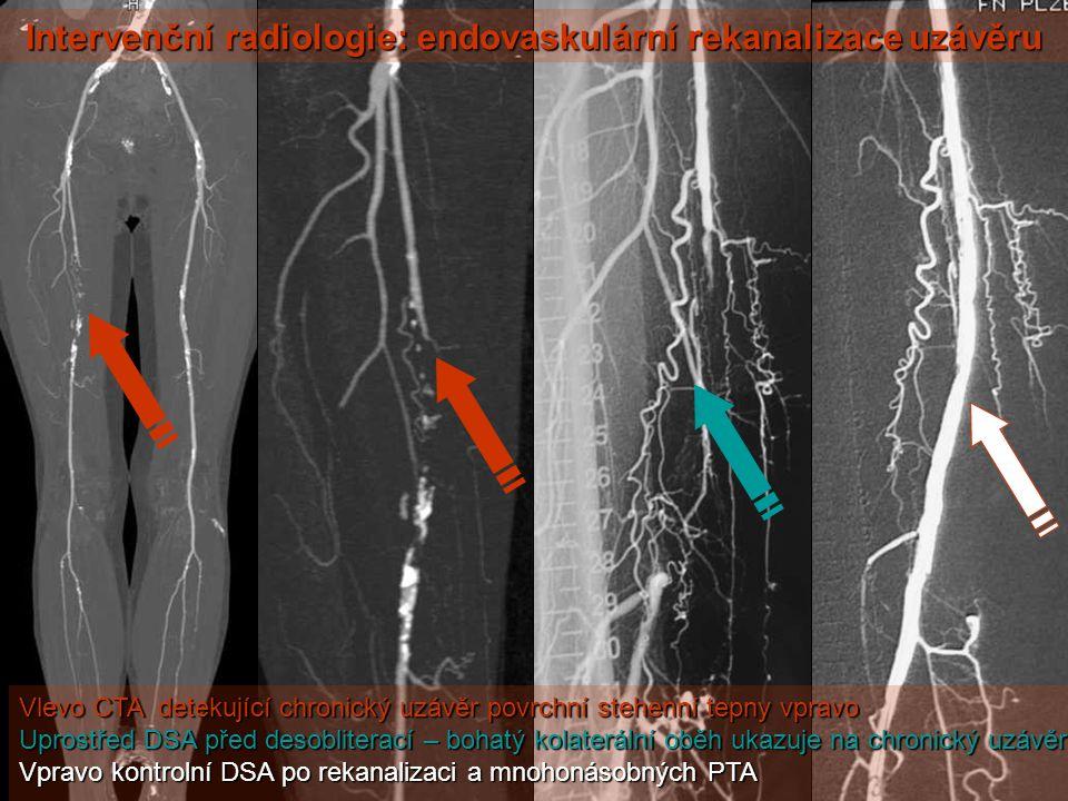 Vlevo CTA detekující chronický uzávěr povrchní stehenní tepny vpravo Uprostřed DSA před desobliterací – bohatý kolaterální oběh ukazuje na chronický u