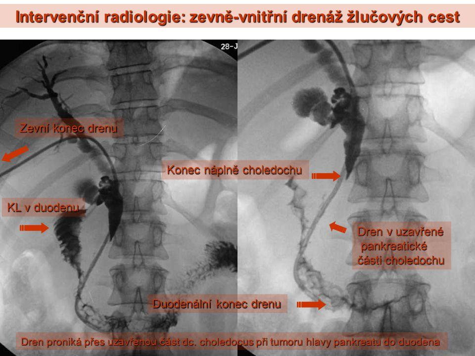 Intervenční radiologie: zevně-vnitřní drenáž žlučových cest Dren proniká přes uzavřenou část dc. choledocus při tumoru hlavy pankreatu do duodena KL v