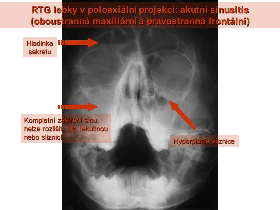 RTG lebky v poloaxiální projekci: akutní sinusitis (oboustranná maxillární a pravostranná frontální) Kompletní zastření sinu, nelze rozlišit, zda tekutinou nebo sliznicí Hladinka sekretu sekretu Hyperplazie sliznice