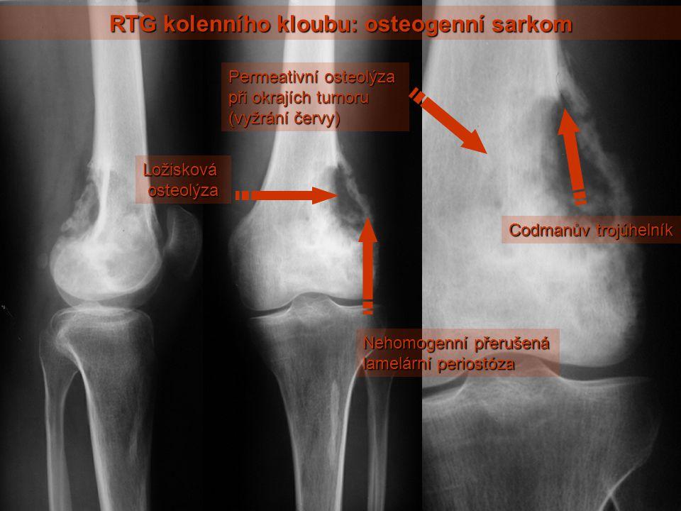 RTG kolenního kloubu: osteogenní sarkom Ložisková osteolýza osteolýza Nehomogenní přerušená lamelární periostóza Permeativní osteolýza při okrajích tumoru (vyžrání červy) Codmanův trojúhelník