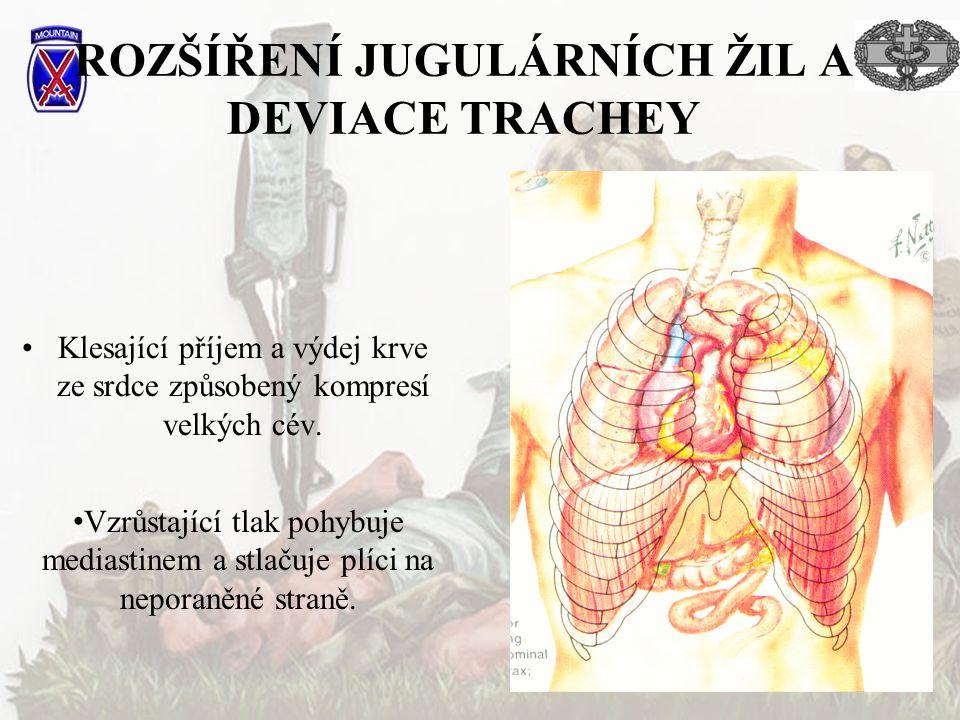 ROZŠÍŘENÍ JUGULÁRNÍCH ŽIL A DEVIACE TRACHEY Klesající příjem a výdej krve ze srdce způsobený kompresí velkých cév.