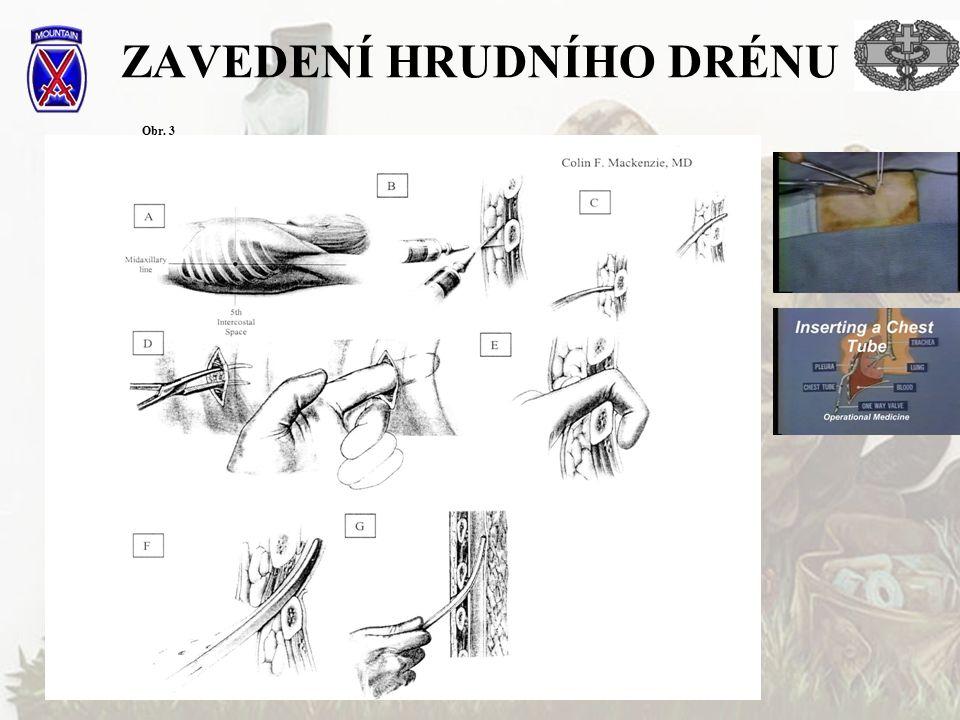 ZAVEDENÍ HRUDNÍHO DRÉNU Obr. 3
