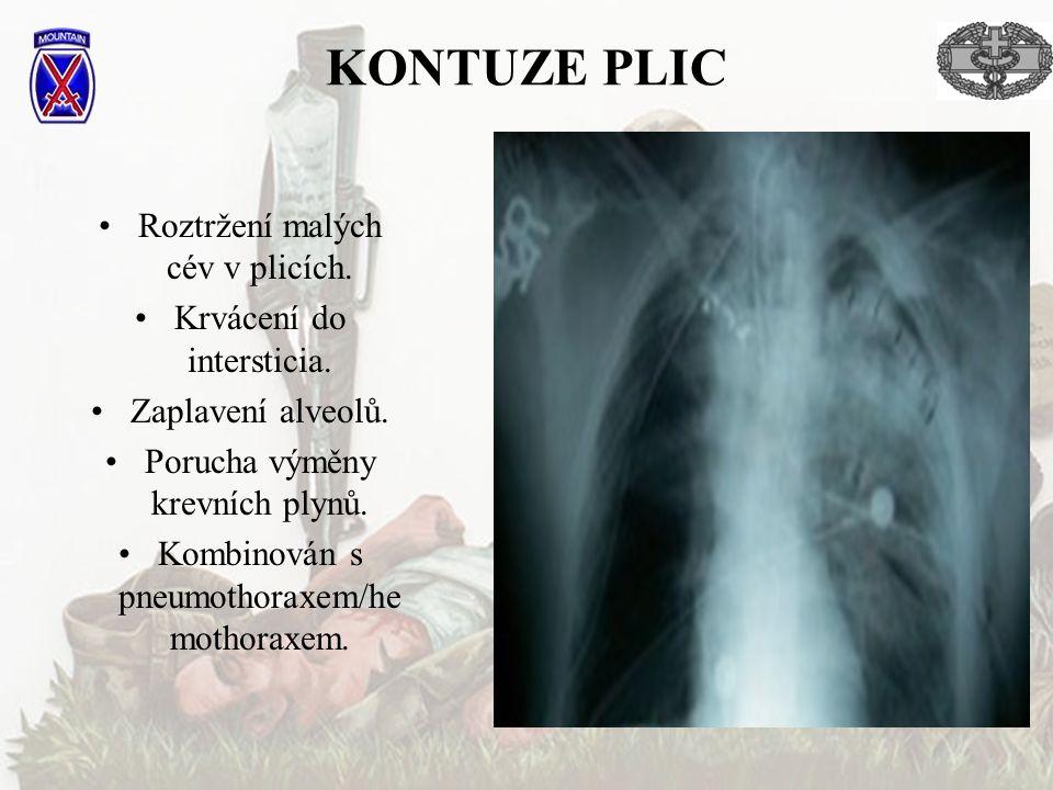 KONTUZE PLIC Roztržení malých cév v plicích.Krvácení do intersticia.