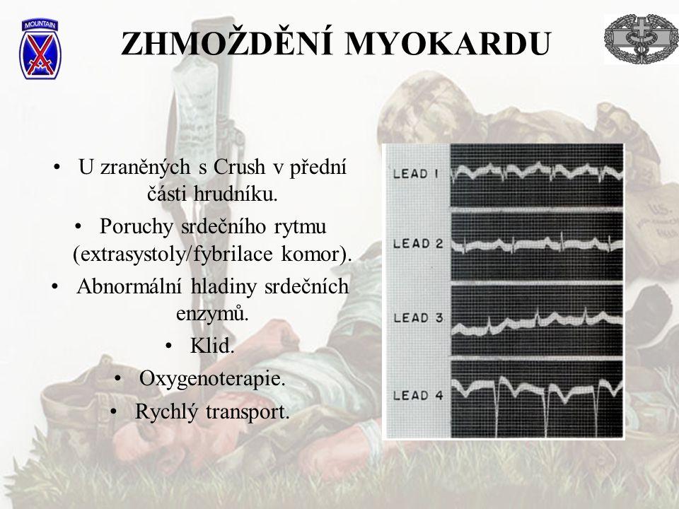 ZHMOŽDĚNÍ MYOKARDU U zraněných s Crush v přední části hrudníku.