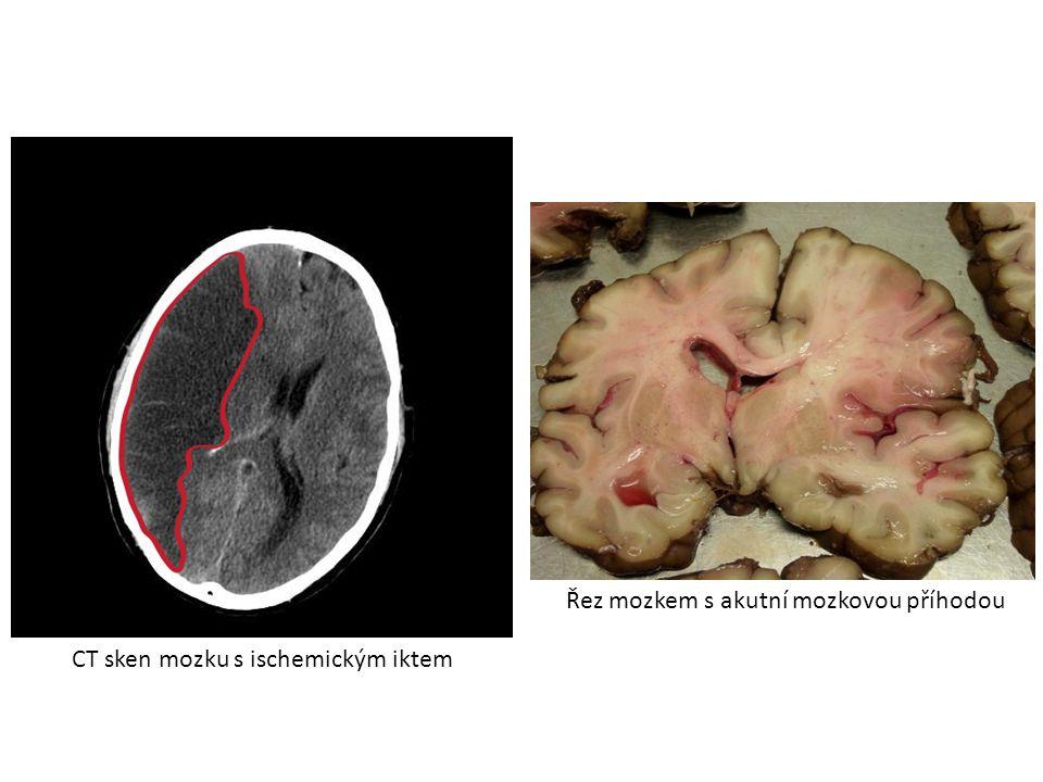 CT sken mozku s ischemickým iktem Řez mozkem s akutní mozkovou příhodou