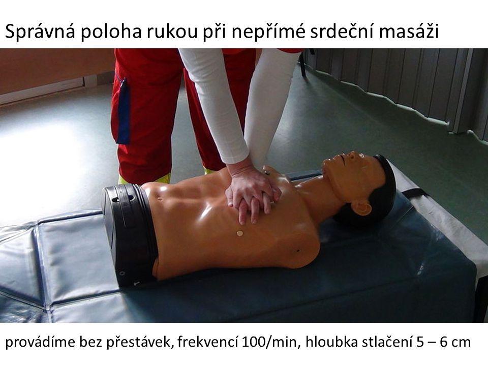 Správná poloha rukou při nepřímé srdeční masáži provádíme bez přestávek, frekvencí 100/min, hloubka stlačení 5 – 6 cm