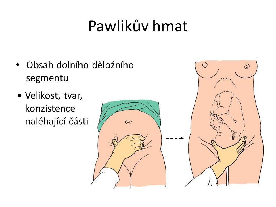 Obsah dolního děložního segmentu Velikost, tvar, konzistence naléhající části Pawlikův hmat