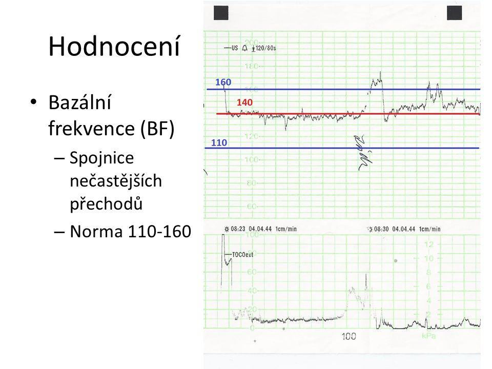 Hodnocení Bazální frekvence (BF) – Spojnice nečastějších přechodů – Norma 110-160