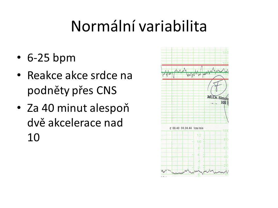 Normální variabilita 6-25 bpm Reakce akce srdce na podněty přes CNS Za 40 minut alespoň dvě akcelerace nad 10