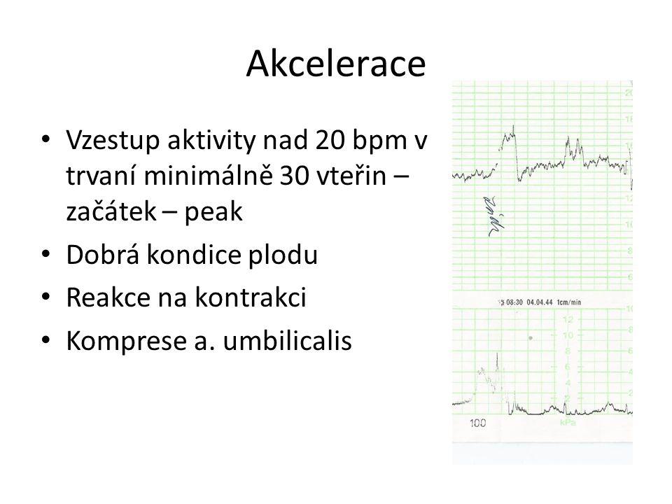Akcelerace Vzestup aktivity nad 20 bpm v trvaní minimálně 30 vteřin – začátek – peak Dobrá kondice plodu Reakce na kontrakci Komprese a. umbilicalis