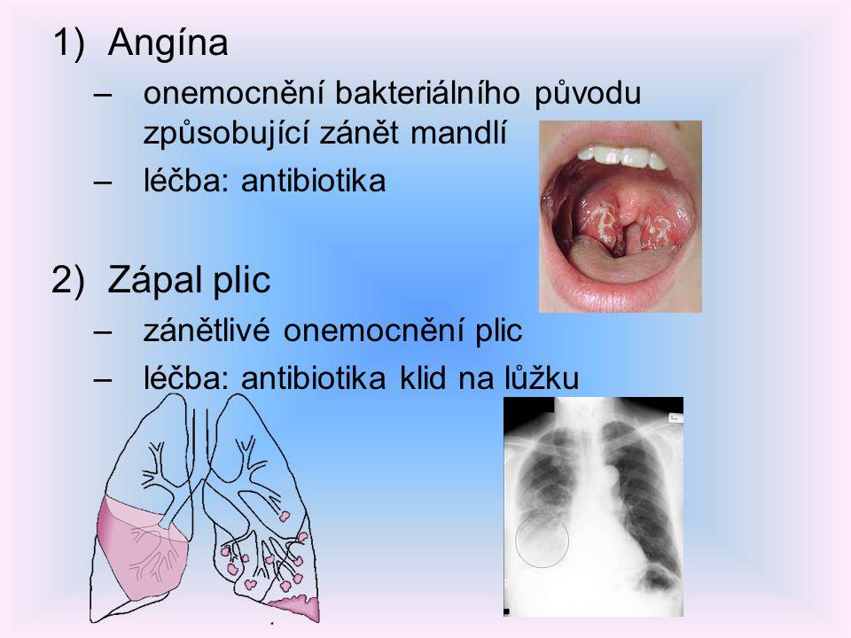 1)Angína –onemocnění bakteriálního původu způsobující zánět mandlí –léčba: antibiotika 2)Zápal plic –zánětlivé onemocnění plic –léčba: antibiotika kli