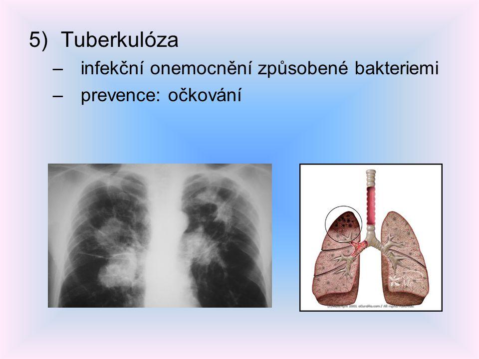 5)Tuberkulóza –infekční onemocnění způsobené bakteriemi –prevence: očkování