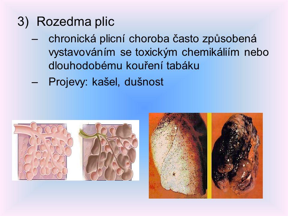 3)Rozedma plic –chronická plicní choroba často způsobená vystavováním se toxickým chemikáliím nebo dlouhodobému kouření tabáku –Projevy: kašel, dušnos