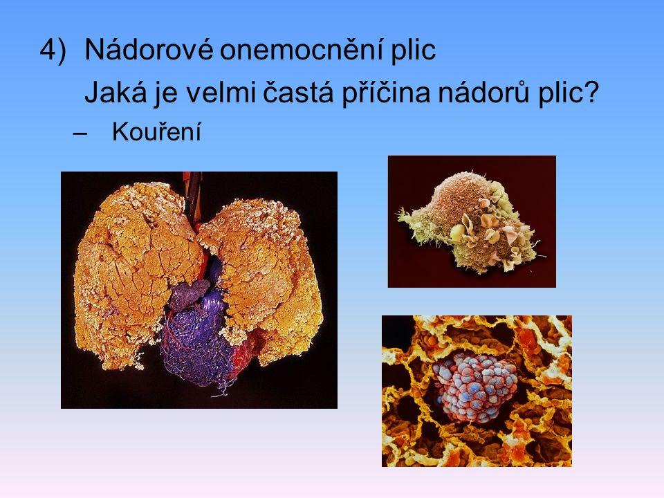 4)Nádorové onemocnění plic Jaká je velmi častá příčina nádorů plic? –Kouření