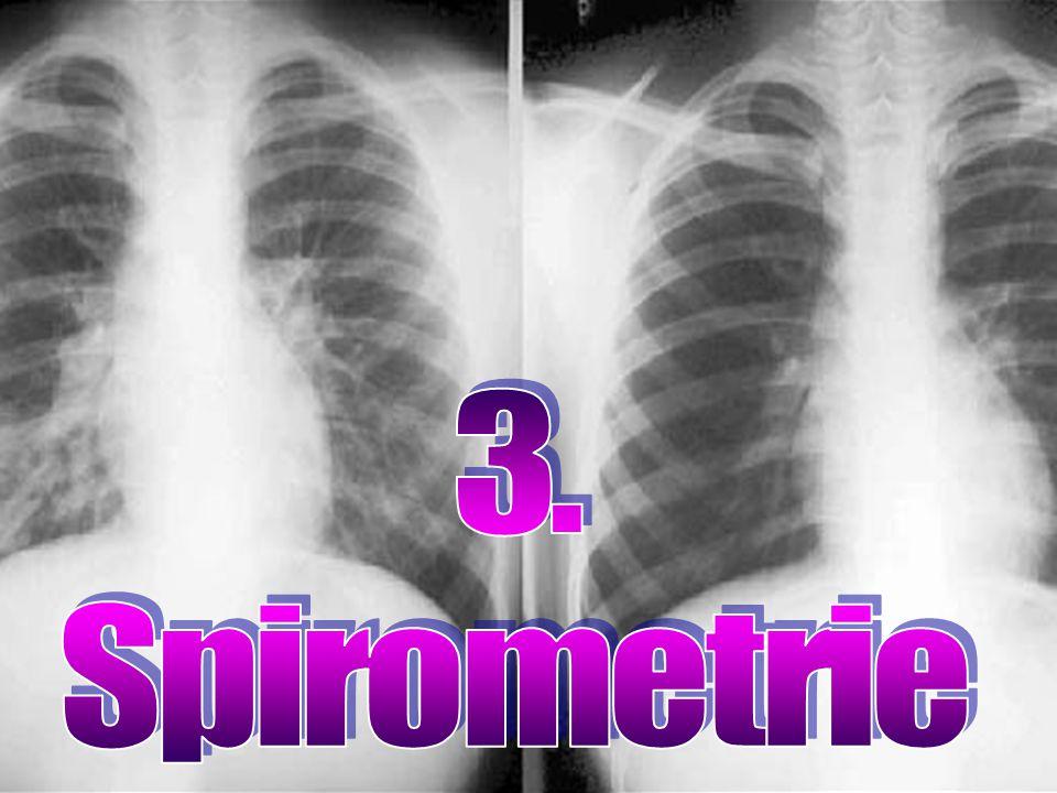 Základní funkční vyšetření plic SPIROMETRIE: využití Měření množství ventilovaného vzduchu Měření výdechových rychlostí Porovnávání naměřených hodnot s normovanými hodnotami Diagnostika plicních onemocnění, monitorování jejich průběhu a doporučení další léčby