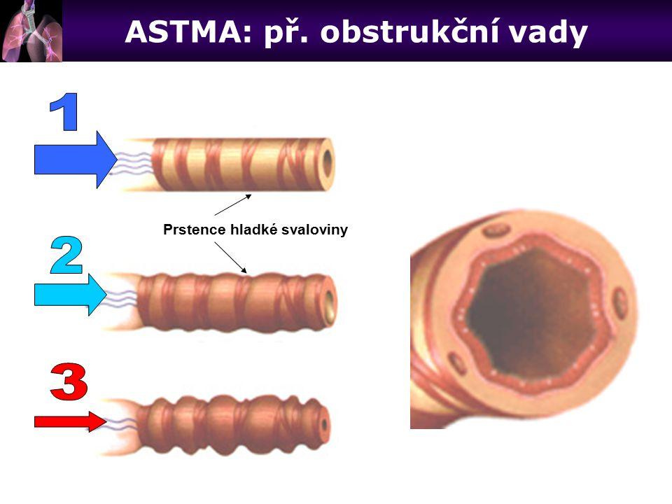 Prstence hladké svaloviny ASTMA: př. obstrukční vady