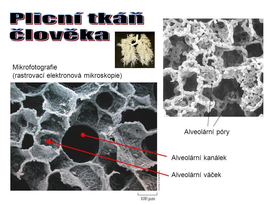 Mikrofotografie (rastrovací elektronová mikroskopie) Alveolární kanálek Alveolární váček Alveolární póry
