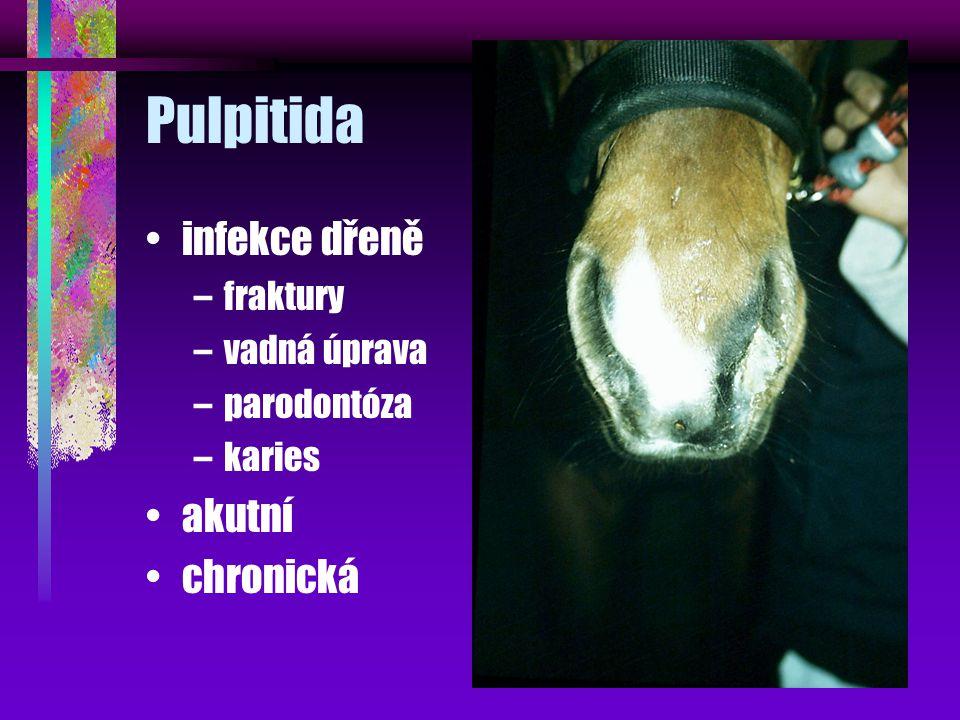 Pulpitida infekce dřeně –fraktury –vadná úprava –parodontóza –karies akutní chronická