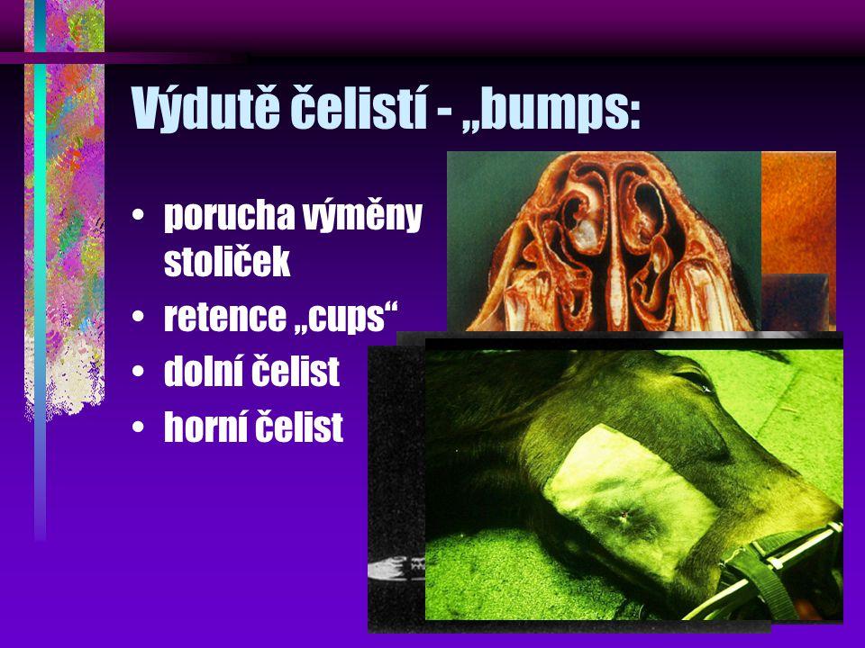 """Výdutě čelistí - """"bumps: porucha výměny stoliček retence """"cups"""" dolní čelist horní čelist"""