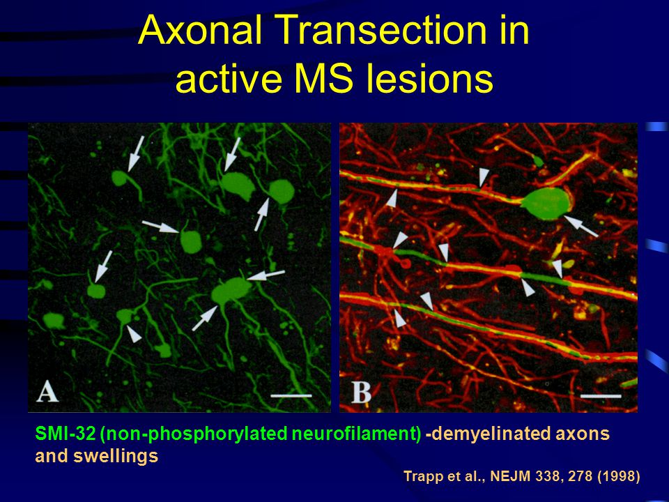 Zánětlivé myopatie Myositis s inkluzními tělísky
