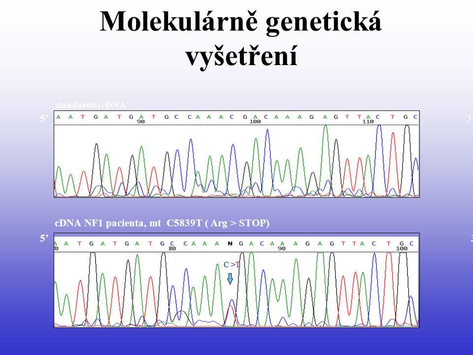 Molekulárně genetická vyšetření C >T cDNA NF1 pacienta, mt C5839T ( Arg > STOP) standardní cDNA 5' 3'