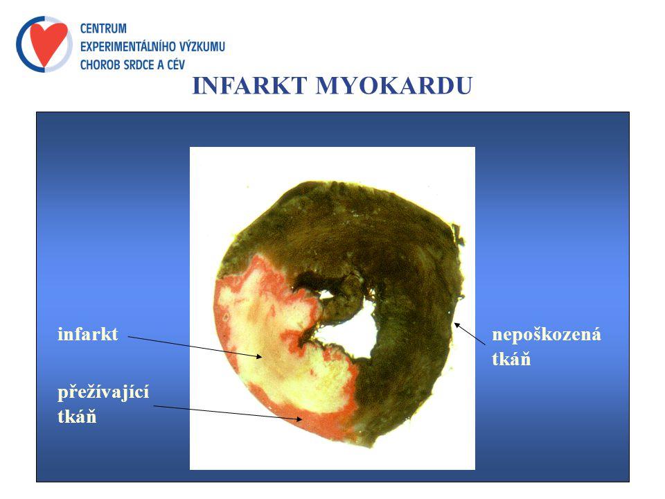 INFARKT MYOKARDU infarkt přežívající tkáň nepoškozená tkáň