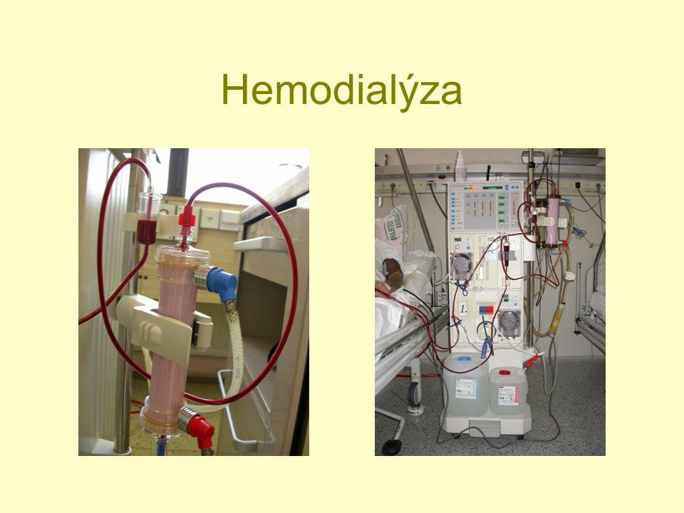 Metabolické důsledky CHRI: Renální anémie.Porucha homeostázy vody a sodíku.