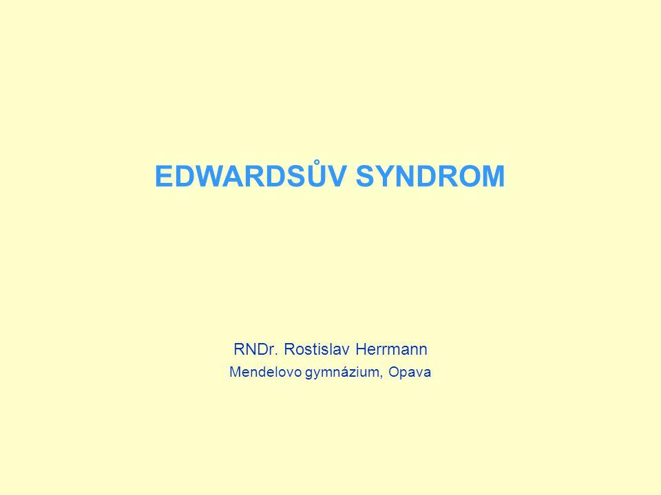 EDWARDSŮV SYNDROM RNDr. Rostislav Herrmann Mendelovo gymnázium, Opava