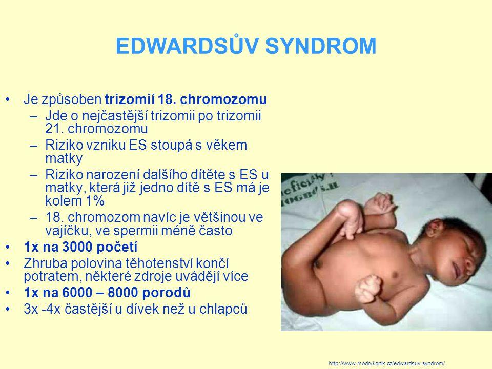 EDWARDSŮV SYNDROM Je způsoben trizomií 18. chromozomu –Jde o nejčastější trizomii po trizomii 21. chromozomu –Riziko vzniku ES stoupá s věkem matky –R