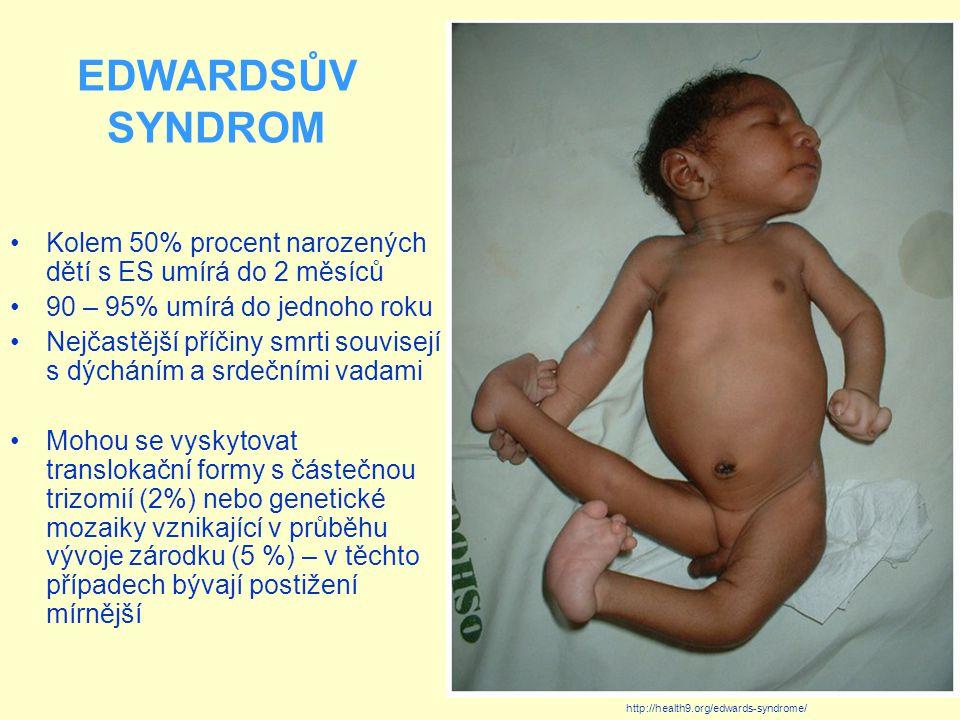 EDWARDSŮV SYNDROM Kolem 50% procent narozených dětí s ES umírá do 2 měsíců 90 – 95% umírá do jednoho roku Nejčastější příčiny smrti souvisejí s dýcháním a srdečními vadami Mohou se vyskytovat translokační formy s částečnou trizomií (2%) nebo genetické mozaiky vznikající v průběhu vývoje zárodku (5 %) – v těchto případech bývají postižení mírnější http://health9.org/edwards-syndrome/