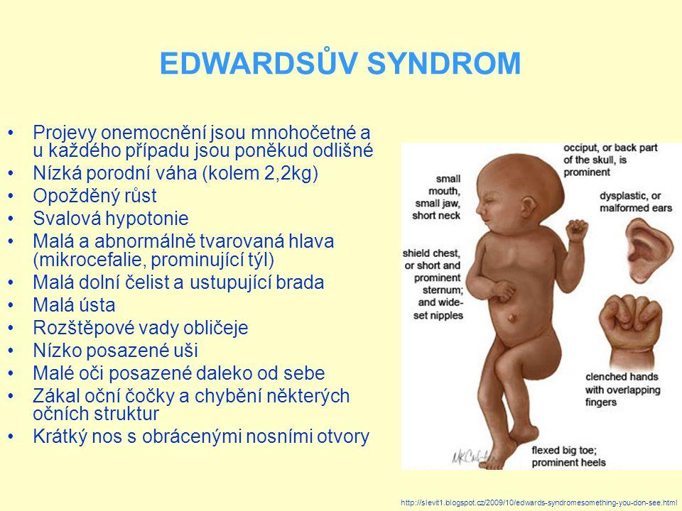 EDWARDSŮV SYNDROM Projevy onemocnění jsou mnohočetné a u každého případu jsou poněkud odlišné Nízká porodní váha (kolem 2,2kg) Opožděný růst Svalová hypotonie Malá a abnormálně tvarovaná hlava (mikrocefalie, prominující týl) Malá dolní čelist a ustupující brada Malá ústa Rozštěpové vady obličeje Nízko posazené uši Malé oči posazené daleko od sebe Zákal oční čočky a chybění některých očních struktur Krátký nos s obrácenými nosními otvory http://slevit1.blogspot.cz/2009/10/edwards-syndromesomething-you-don-see.html