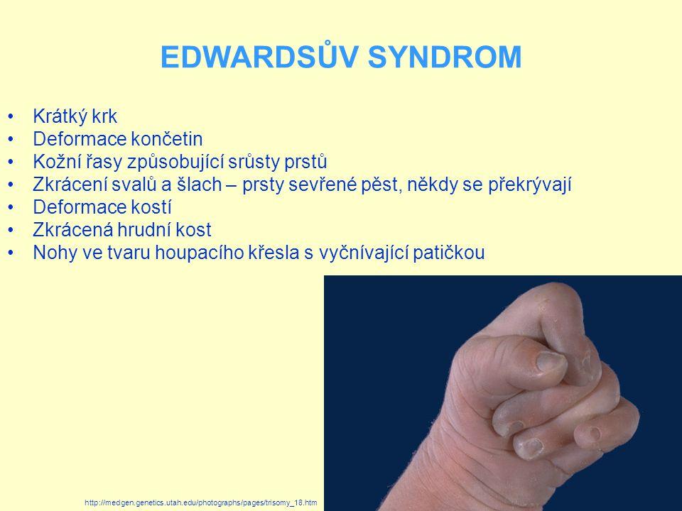 EDWARDSŮV SYNDROM Krátký krk Deformace končetin Kožní řasy způsobující srůsty prstů Zkrácení svalů a šlach – prsty sevřené pěst, někdy se překrývají D